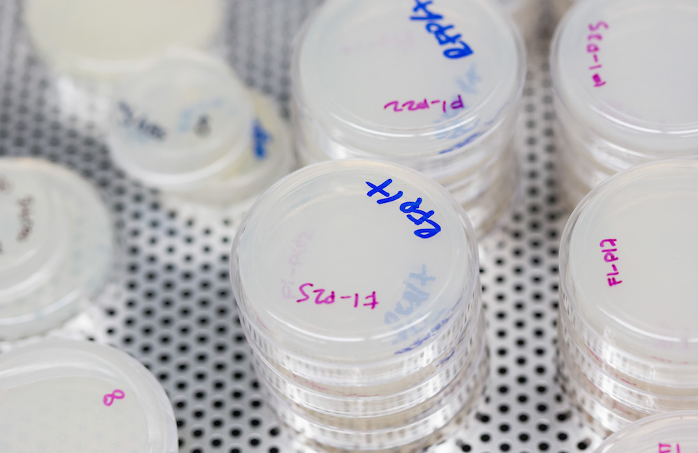 Several labeled petri dishes in a lab.